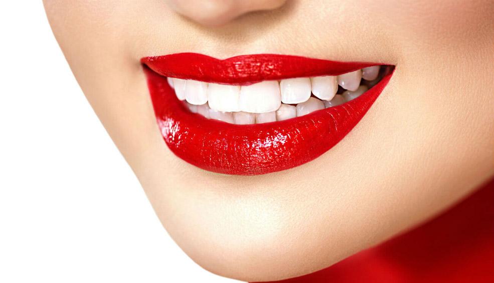 otbelivanie-zubov-v-kieve